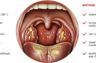 Болезни горла и гортани, фото и симптомы фарингита