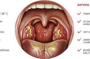 angina-i-tonzillit