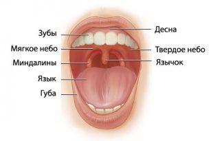 Гипертрофия язычной миндалины