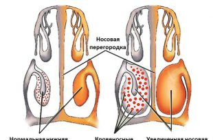 vazomotornyj-rinit
