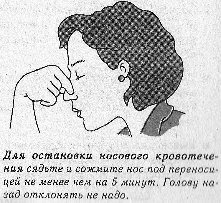 Почему течет из носа кровь по утрам