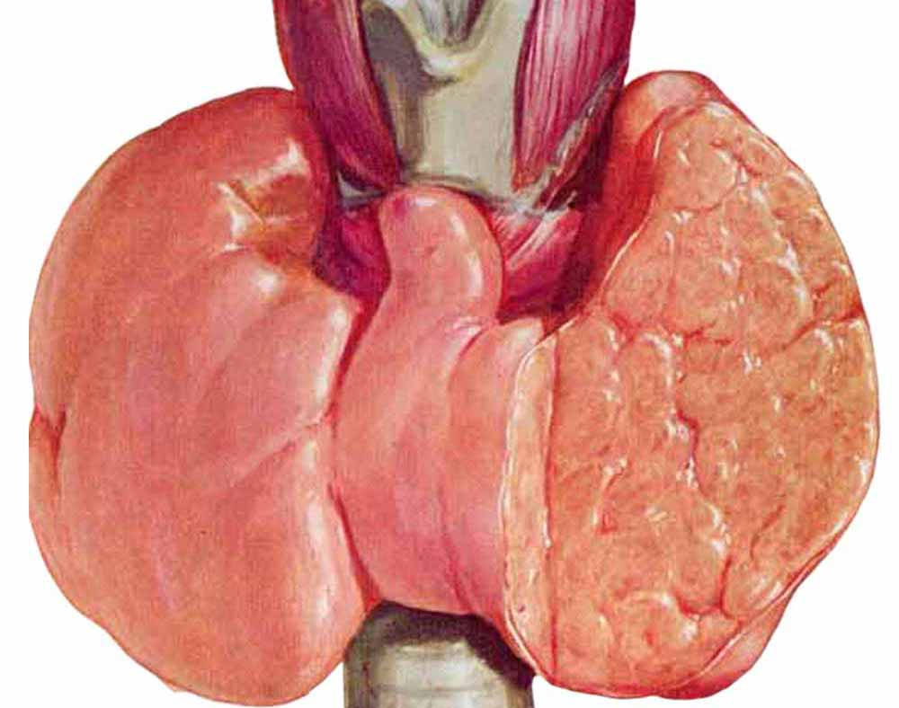 Многоузловой зоб щитовидной железы – симптомы картинки