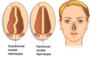Частые кровотечения из носа у взрослого причины