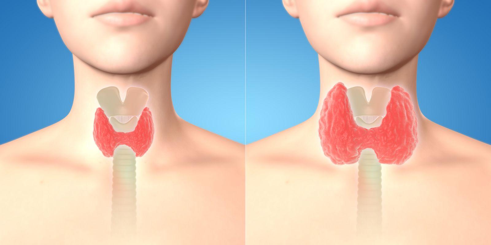 Увеличенная щитовидная железа: диета